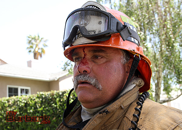 One Burbank Fire  Captain Jim Baldridge received a small bruise to the bridge of his nose, while attacking the fire. He remained on the job. (Photo by Ross A. Benson)